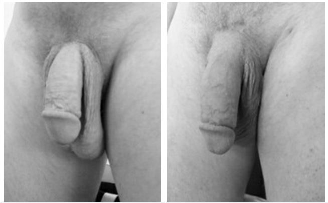 Are You Embarrassed By Your Penis Natural And Safe Tips For An Effective Big Penis Regrowth Skills