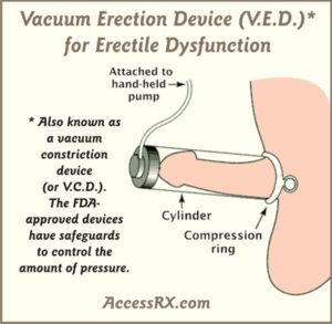 erectile-dysfunction-pumps
