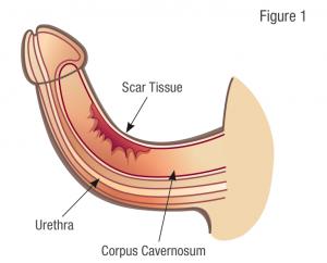 Source: Coloplast Men's Health